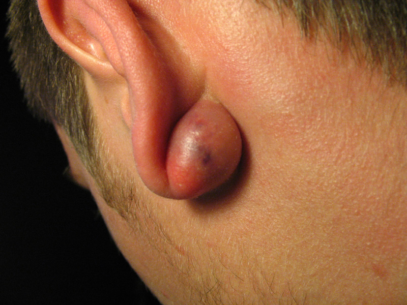 One example of a sebaceous cyst. If you want to see how horribly bad they can get, you can do a Google images search. Photo: Wikimedia Commons